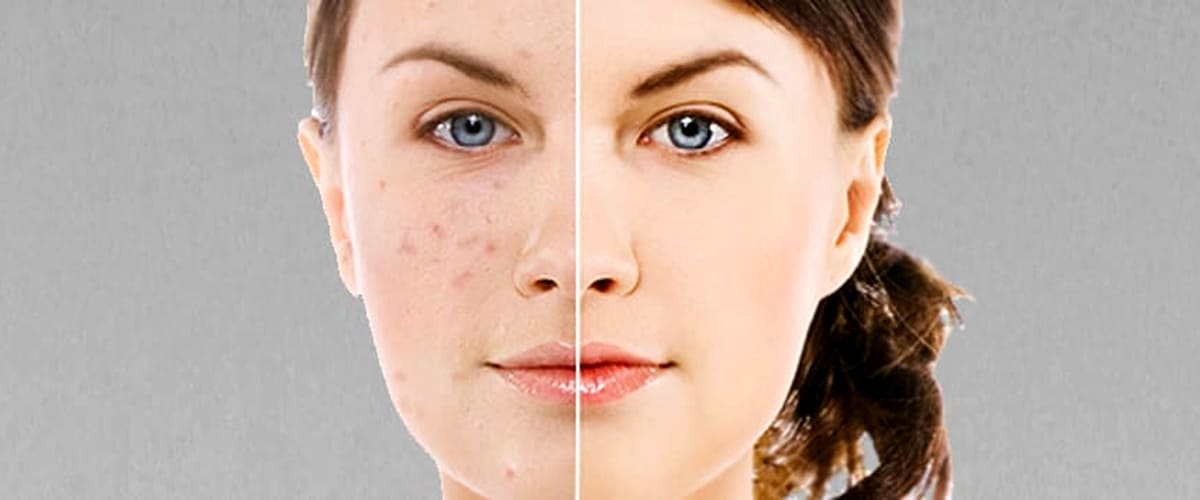 face with dark spots