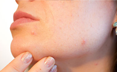 face with acne spots